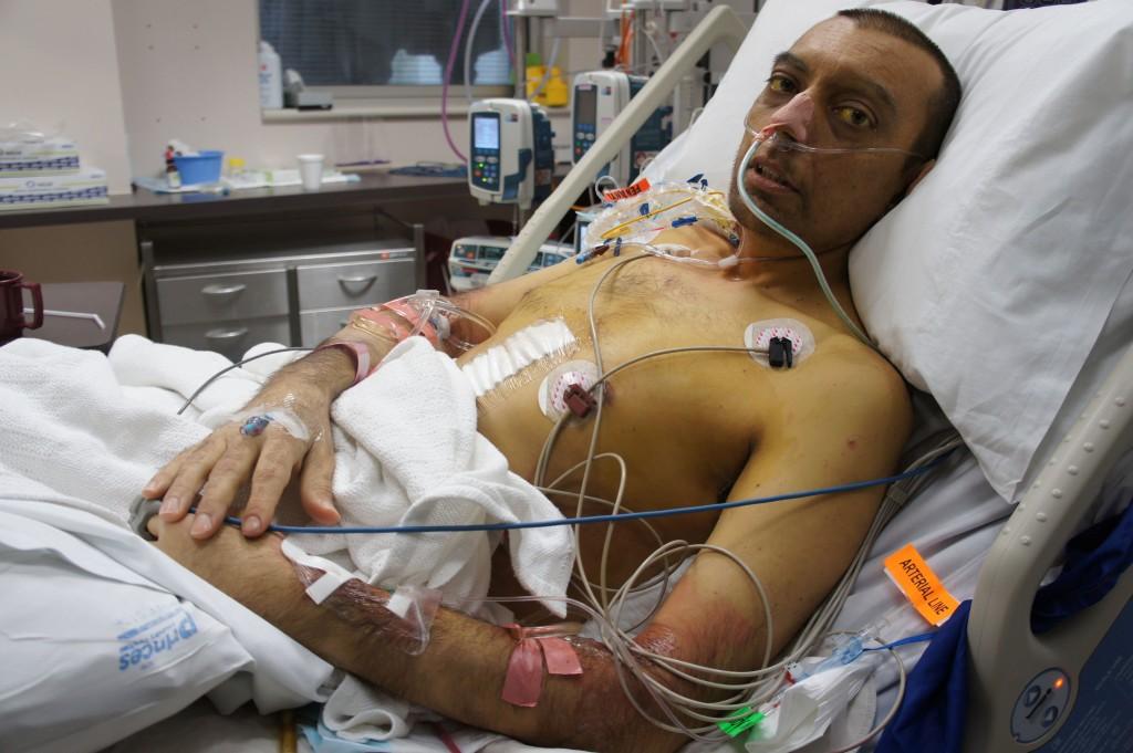 ICU Liver Transplant