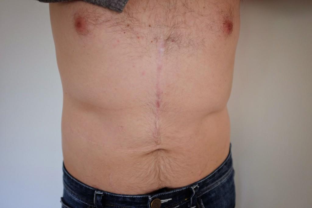 Liver Transplant Scar