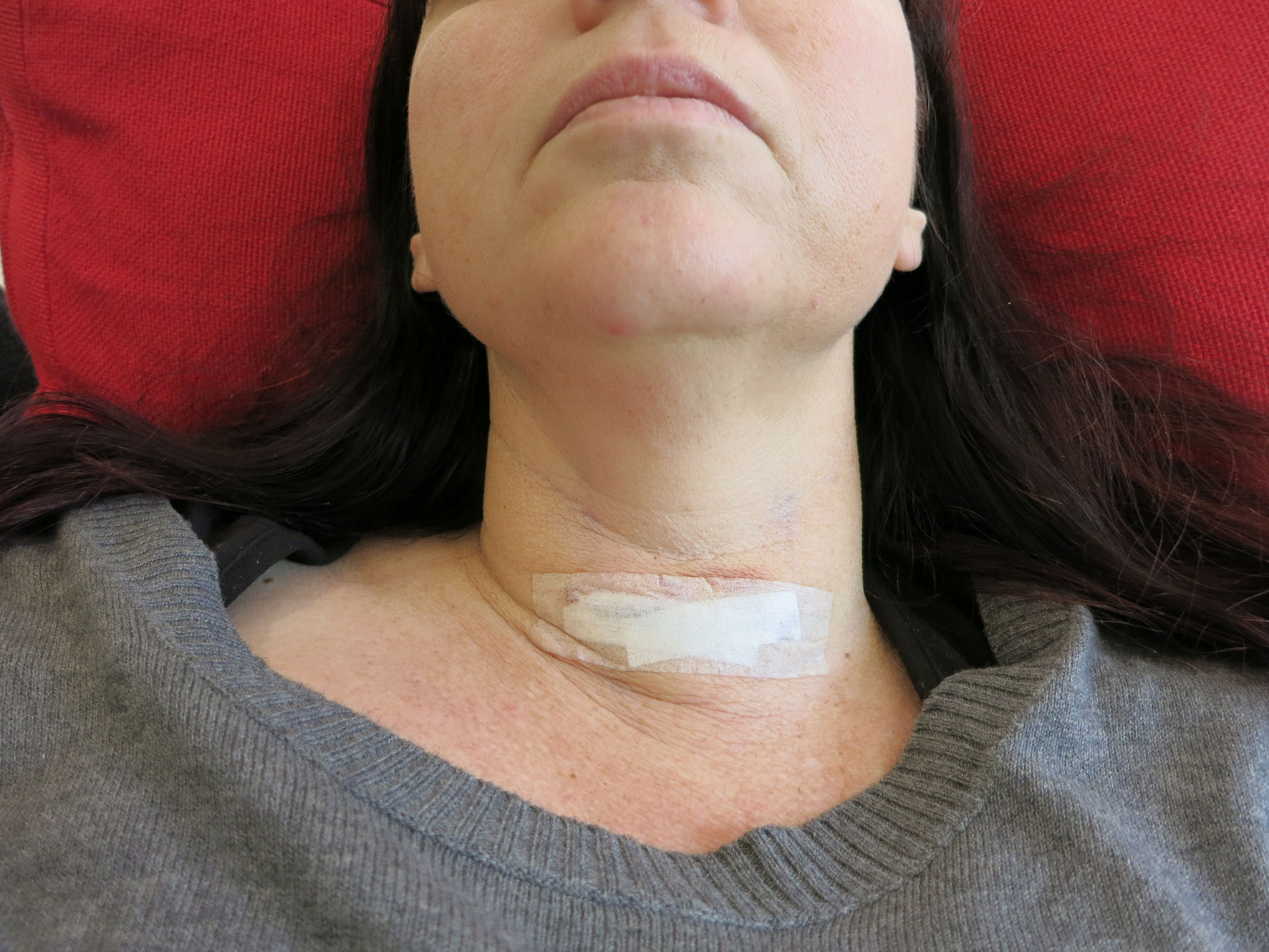 Thyroid Surgery - One Year On