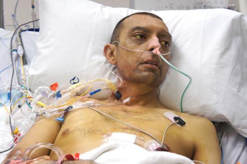 After-Liver-Transplant-Recipient