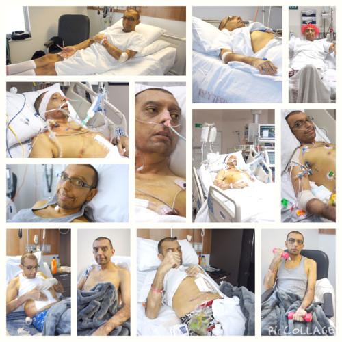 Liver-transplant-collage
